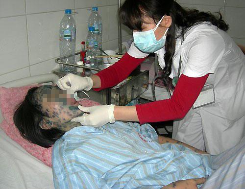 Nếu không được điều trị kịp thời, thủy đậu cũng có thể gây nhiều biến chứng nguy hiểm.