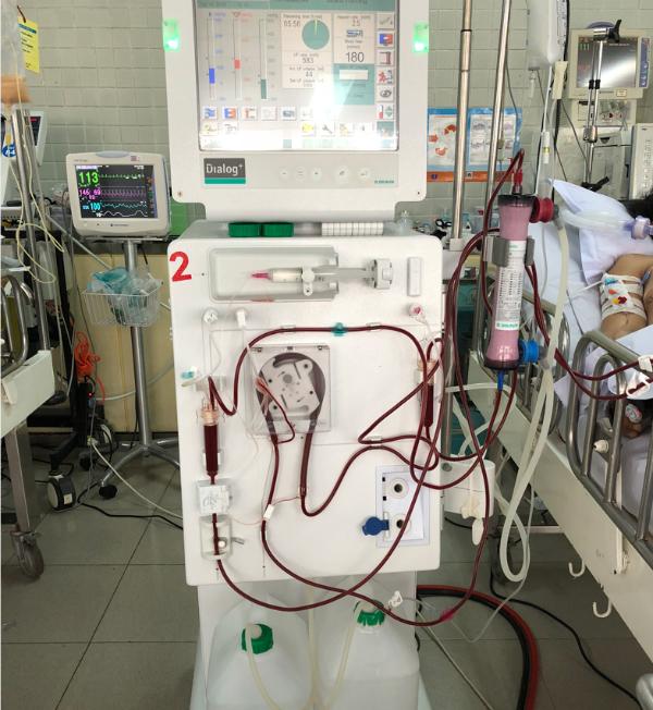 Máy lọc máu cho bệnh nhân tại Khoa Hồi sức Cấp cứu, Bệnh viện Chợ Rẫy. Ảnh: N.H
