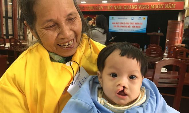 Trẻ bị dị tật hở môi được phẫu thuật tại Bệnh viện Răng Hàm Mặt Trung ương. Ảnh: L.N