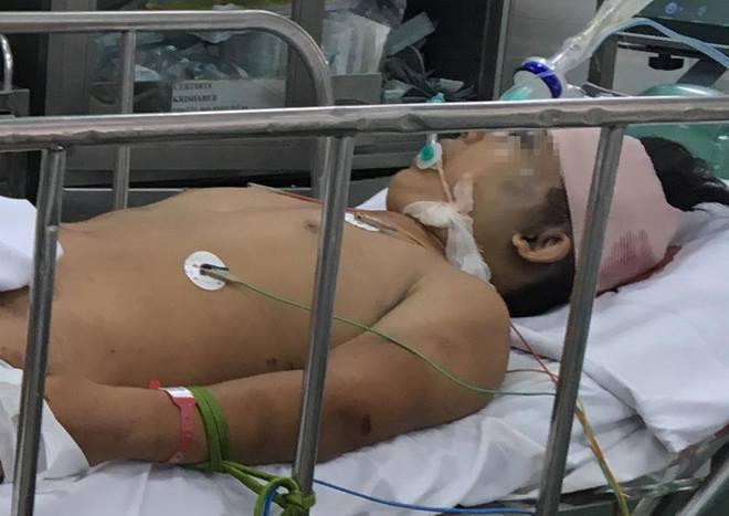 Thiếu niên nguy kịch do ngã xuống sông sau khi cổ vũ bóng đá