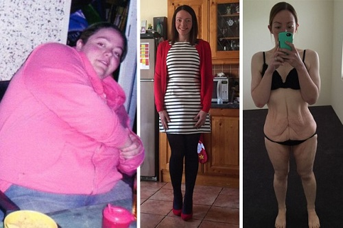 Cô gái giảm 95kg chỉ vì một lời chê