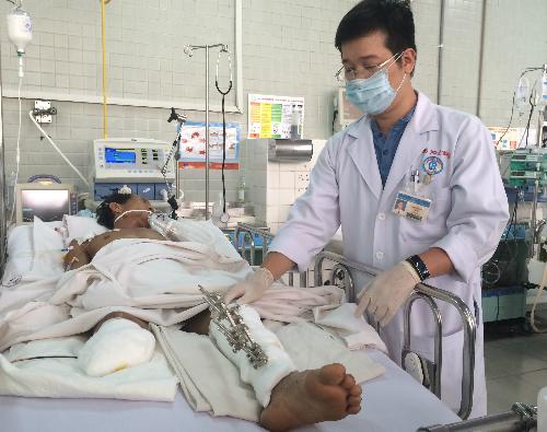 Bệnh nhân đang được theo dõi tích cực tại Khoa Hồi sức Cấp cứu, Bệnh viện Chợ Rẫy TP HCM. Ảnh: Lê Phương.