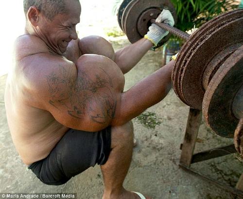 Arlindo de Souza có chu vi bắp tay lên đến gần 74cm, lớn nhất đất nước, sau khi tiêm chất độn vào cơ thể. Ảnh: UK News