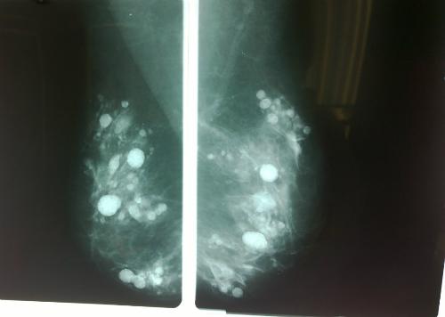 Hình ảnh X quang tuyến vú của bệnh nhân có rất niều nốt, dầy đặc trong mô vú, không thể phân biệt với khối u. Ảnh: BVCC.