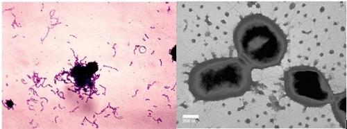 Vi khuẩn nào là nguyên nhân hàng đầu gây sâu răng, viêm lợi? 2