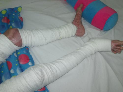 Bé Vũ đang được điều trị tại Bệnh viện Nhi đồng 2. Đôi chân bỏng năng khiến em không thể đi lại. Ảnh: Lê Phương.