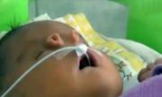 Bé sơ sinh với lỗ mũi dị thường