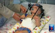 Ca mổ 'kỳ diệu' nối đầu cổ cứu bé trai bị tai nạn giao thông