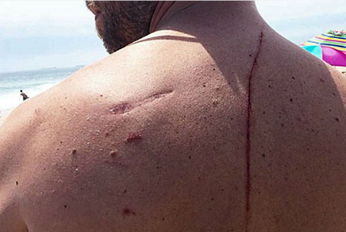 Finney bị cá mập tấn công khi đang tắm biển. Ảnh: W.P