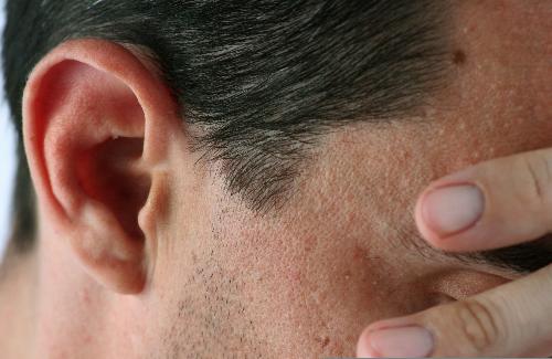 Nhức đầu cụm xảy ra phổ biến ở nam giới. Ảnh: heartbreak