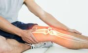 Tổn thương xương dưới sụn - nhận diện mới của thoái hóa khớp