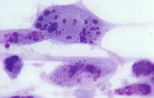 virus-herpes-4218-1446216977