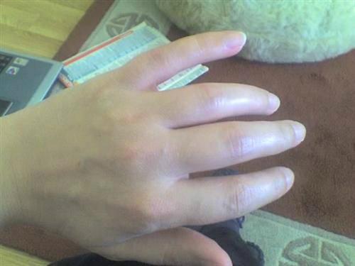 Ngón tay biến dạng hình thoi