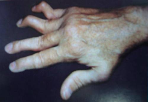 Biến dạng ngón tay hình cổ thiên nga.