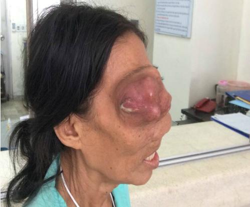Khối u ác tính khiến mắt người phụ nữ bị đẩy ra ngoài. Ảnh: Bệnh viện cung cấp.