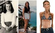 Người phụ nữ gầy nhất thế giới do giảm cân