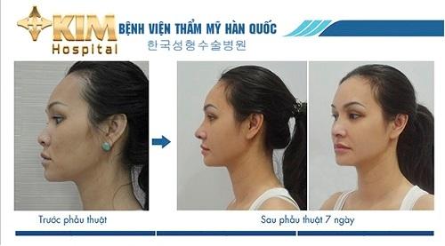công nghệ  Vectra 3D đưa ra hình ảnh mô phỏng chuẩn sau phẫu thuật, kích cỡ cụ thể sụn mũi  với dáng mũi.