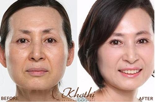 Hình ảnh trước và sau khi căng da mặt. Xem thêm tại đây.