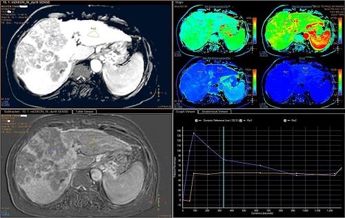 Trường hợp uống rượu bia nhiều được phát hiện ung thư gan sớm bằng MRI Primovist