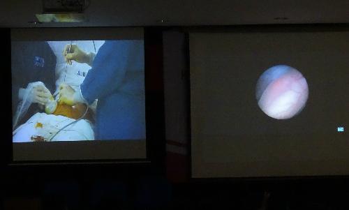 Các ca mổ được truyền hình trực tiếp từ phòng mổ ra hội trường để các bác sĩ sản khoa miền Nam có thể theo dõi, thảo luận. Ảnh: T.P