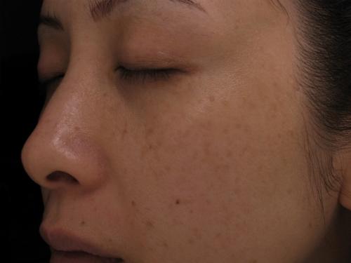 Một số cách nhận biết lão hóa da và thuốc chống lão hóa da hiệu quả
