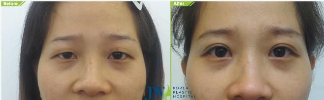 Phẫu thuật mắt to trả lại vẻ xa sỉ cho khuôn mặt