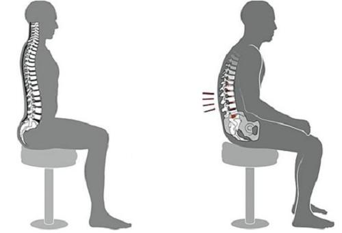 Tư thế ngồi đúng (trái) và sai (phải). Ảnh:Maple Healthcare.