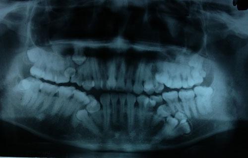 Hàm dưới bệnh nhân còn 4 mầm răng chưa nhô lên. Ảnh: BSCC.