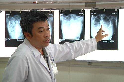 Xquang cho thấy tình trạng phổi dần cải thiện. Ảnh: T.P