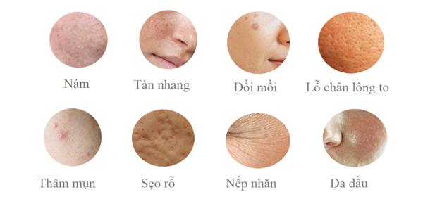 tri-nam-chi-trong-mot-lan-cn-than-tien-mat-tat-mang-1