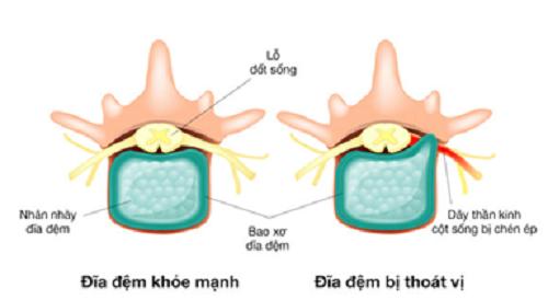 Thoát vị đĩa đệm là do vận động quá mức hoặc có thể do đĩa đệm yếu đi theo tuổi tác dẫn đến chấn thương đĩa gây ra đau đớn