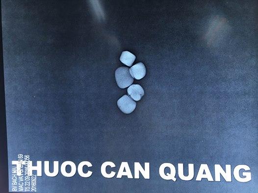 cu-ong-ngo-doc-thuoc-dong-y-khong-ro-nguon-goc