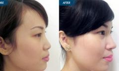 Ưu nhược điểm của nâng mũi sụn tự thân dưới góc nhìn chuyên gia