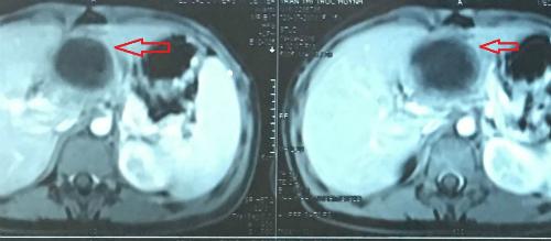 Hình ảnh chụp cắt lớp vi tính ổ bụng bệnh nhân cho thấy khối u vùng tụy.