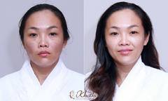 Bí quyết trẻ hóa da của nữ nhân viên văn phòng