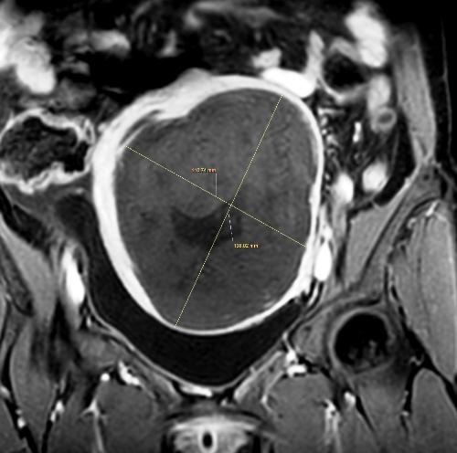 Khối u khoảng 140mm đã bị làm hoại tử hoàn toàn bằng MRI HIFU. Ảnh: Minh Đức