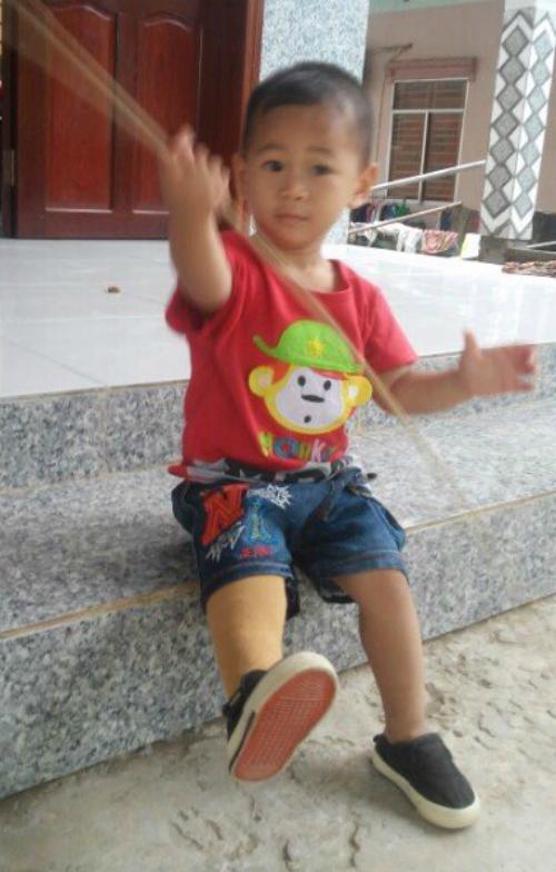 Bé trai 'văng khỏi bụng mẹ' chạy trên chân giả ở tuổi lên 2