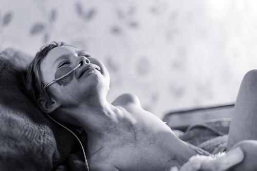 Bức ảnh bé gái ung thư sắp từ giã cuộc đời gây xúc động