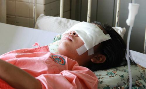 Nữ sinh đang điều trị tại Bệnh viện Chợ Rẫy. Ảnh: T.P