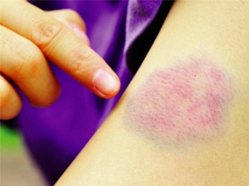 Một dấu hiệu dễ nhận biết nhất của ung thư máu là bệnh nhân dễ bị bầm tím