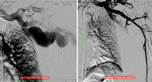 Hình ảnh mạch máu trước và sau can thiệp. Ảnh: T.N
