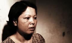 Cô giáo mang án tử ung thư vì khói thuốc