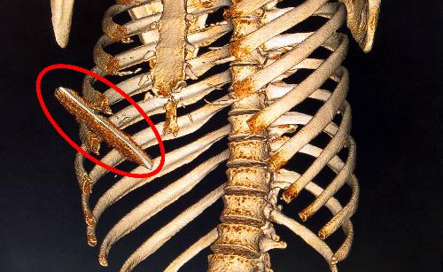 Cung xương sườn 5, 6 của bệnh nhân bị gãy nứt do lưỡi dao đâm vào. Ảnh: V.P