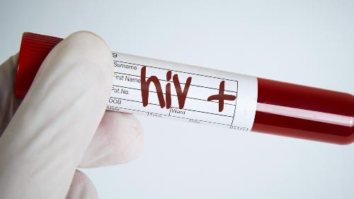 sap-co-vacxin-tri-hiv