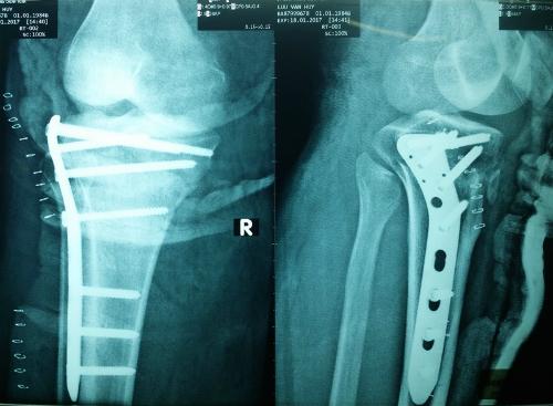 Kết hợp xương bằng đường mổ ít xâm lấn dưới hỗ trợ của màn tăng sáng.