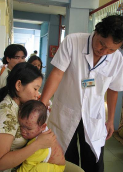 Trẻ điều trị bệnh thủy đậu tại Bệnh viện Nhi đồng 1. Ảnh: T.C