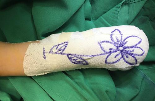 Bác sĩ vẽ không đẹp, hình bông hoa là dễ nhất nên đa số các bé gái được vẽ tặng bông hoa, bác sĩ Xuân Anh chia sẻ. Ảnh: X.A