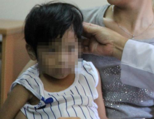 Bệnh nhi điều trị tại Bệnh viện Nhi đồng 1. Ảnh: T.P