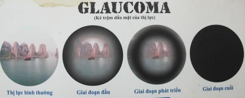 nho-thuoc-mat-chua-corticoid-be-10-tuoi-bi-hong-thi-luc