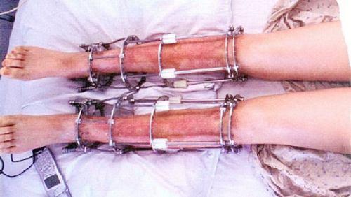 Bộ khung được bắt vít vào xương, khiến bệnh nhân phải chịu cảm giác đau đớn trong một khoảng thời gian khá dài